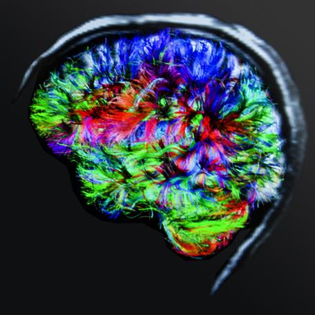 Brain health awareness