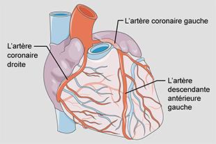 Illustration du cœur humain présentant les artères coronaires, dont l'artère descendante antérieure gauche dont l'obstruction provoque la crise cardiaque du faiseur de veuves.